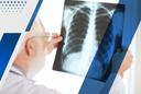 Число случаев заболевания раком лёгких растёт