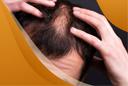 Грибок Как Причина Выпадения Волос